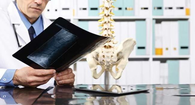 Doctor looking at xray spine model