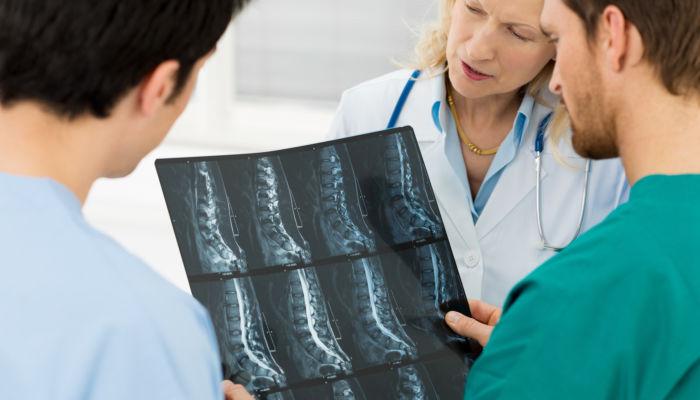 Spine x rays